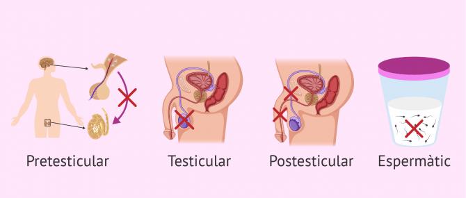Imagen: Causes d'esterilitat masculina