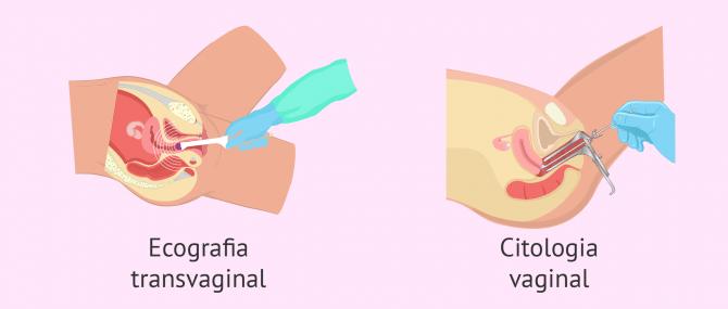 Imagen: Probes ginecològiques per a avaluar la fertilitat femenina