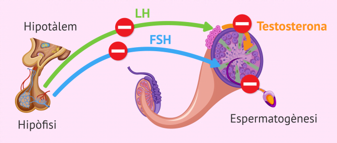 Imagen: Factor endocrí d'esterilitat masculina