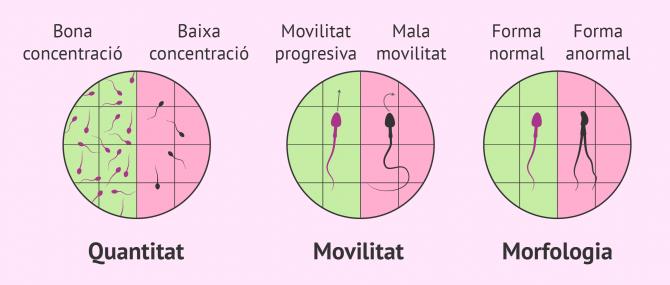 Imagen: Factor espermàtic d'esterilitat masculina
