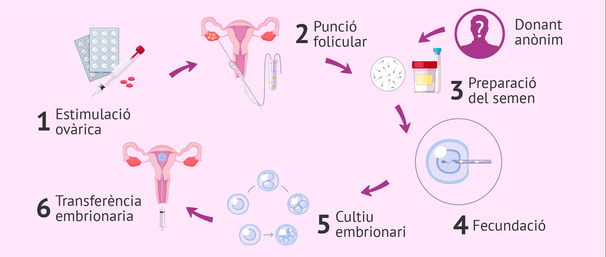 Fecundació in vitro per a dona soltera