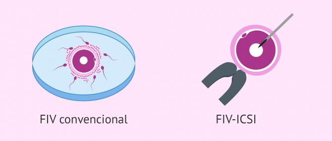 Imagen: Fecundació in vitro convencional o ICSI