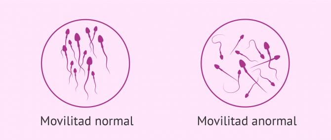 Imagen: ICSI per problemes de mobilitat dels espermatozoides