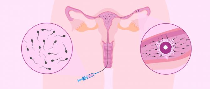 Imagen: La inseminació artificial intrauterina
