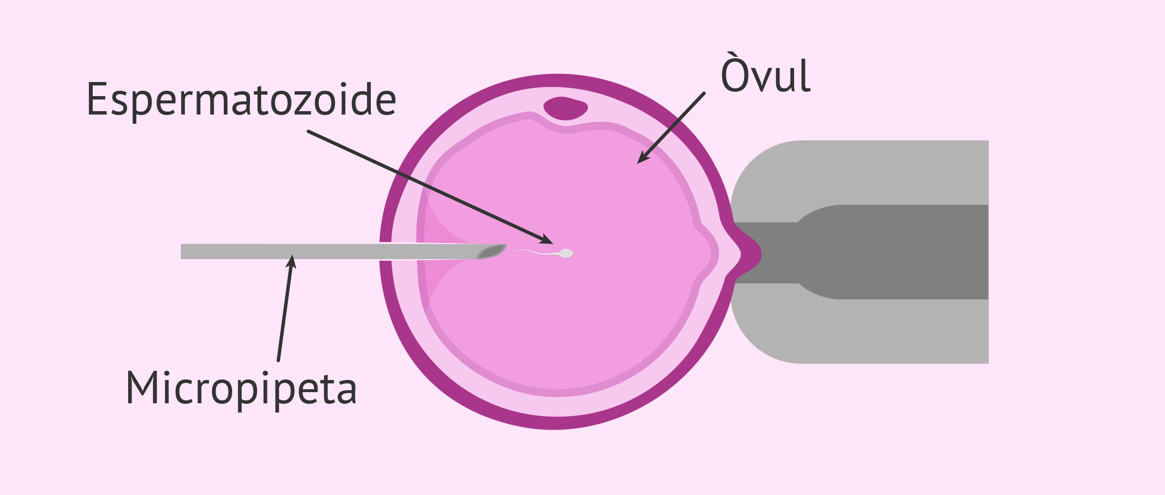Imagen: Microinjecció intracitoplasmática d'espermatozoides (ICSI)