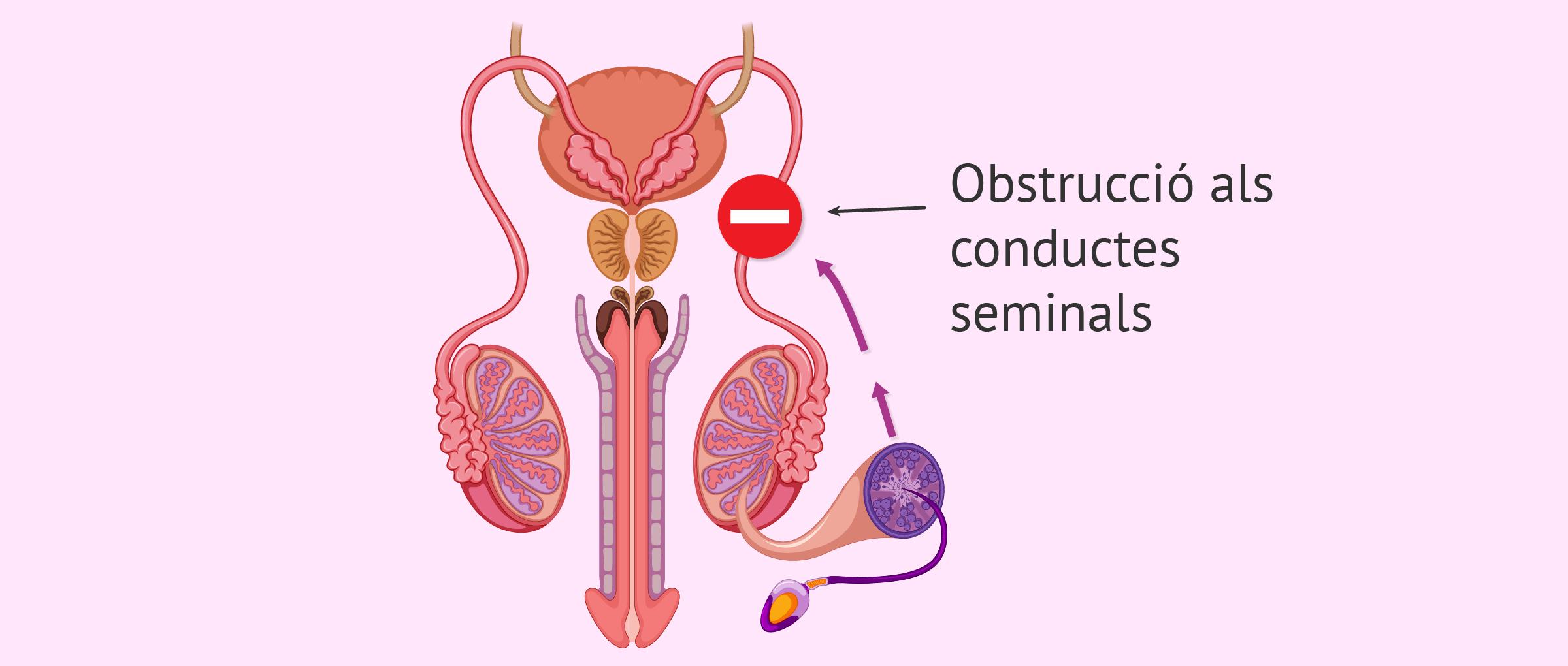Factor postesticular d'esterilitat masculina