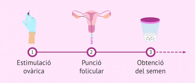Imagen: Primers passos en un cicle de FIV