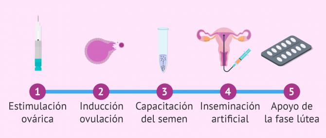 Imagen: Passos d'un tractament amb inseminació artificial (IA)