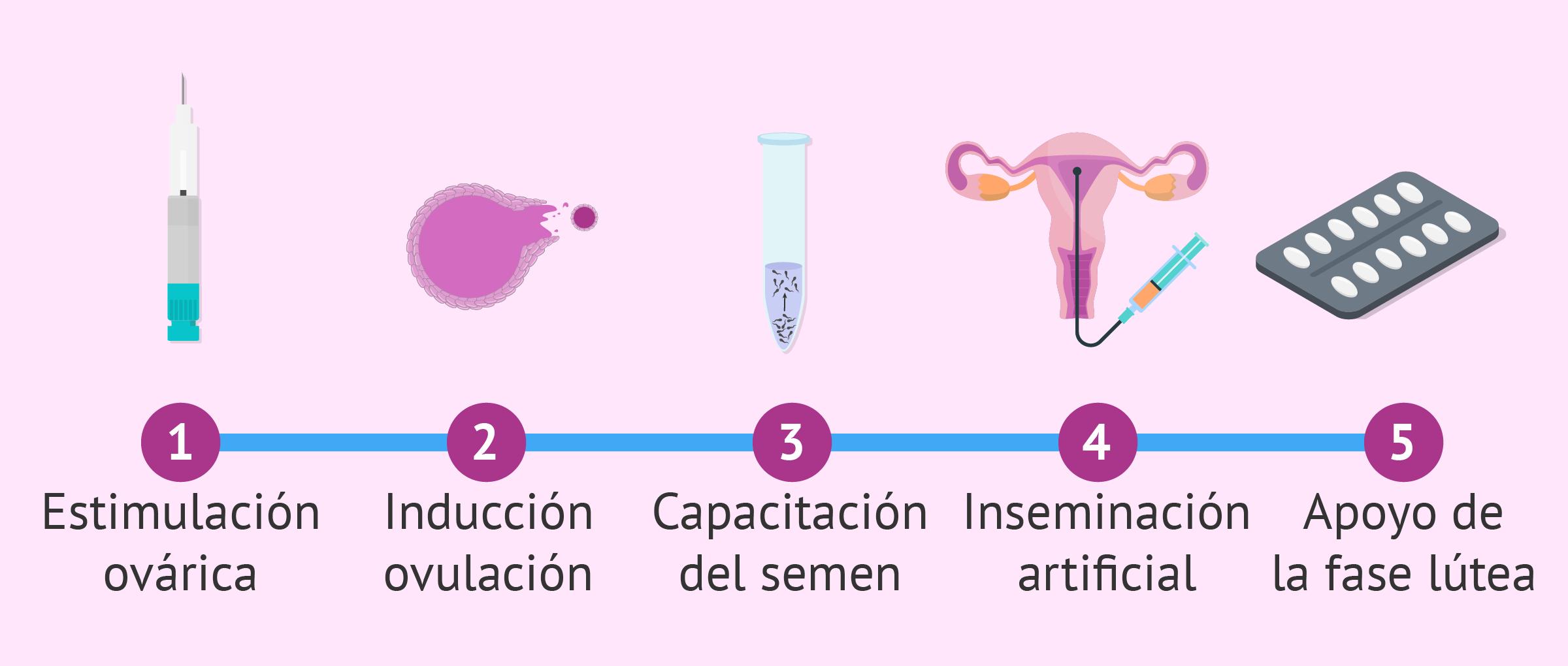 Passos d'un tractament amb inseminació artificial (IA)