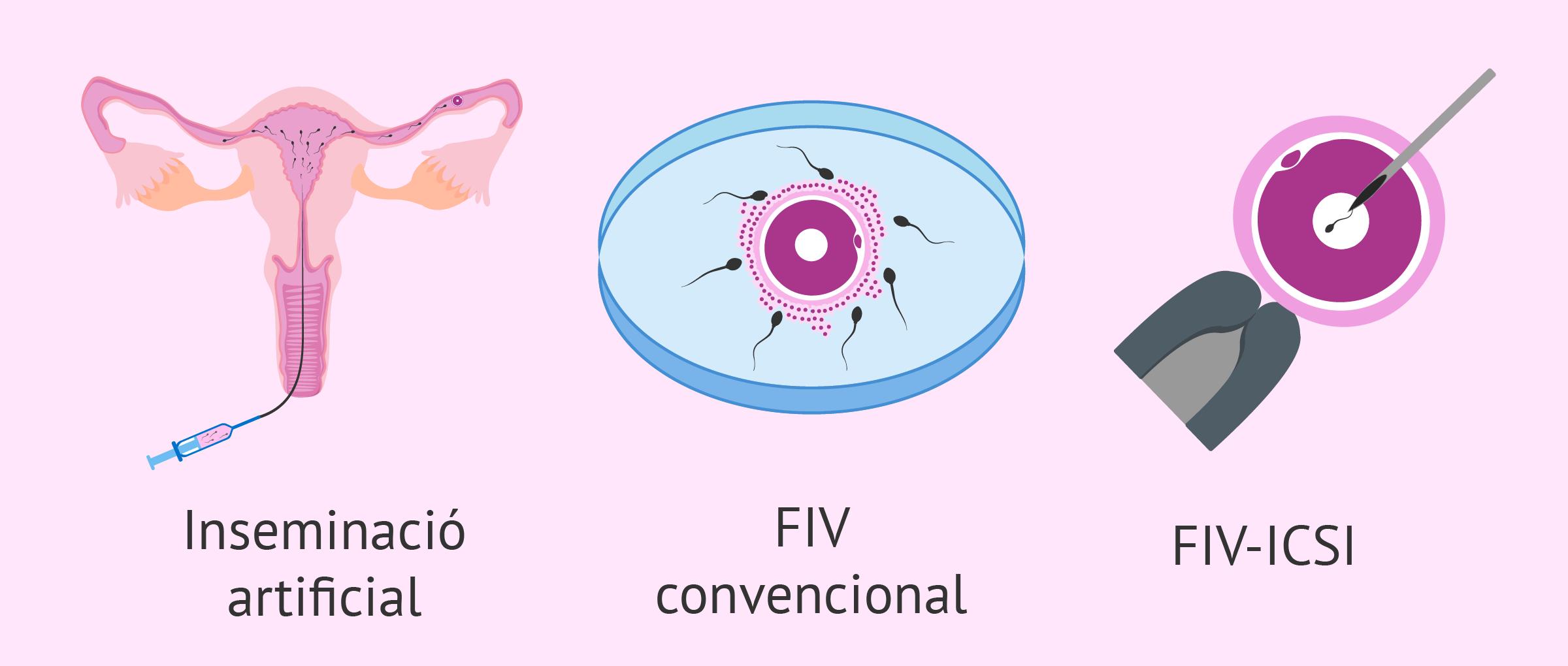 Les tècniques de reproducció assistida