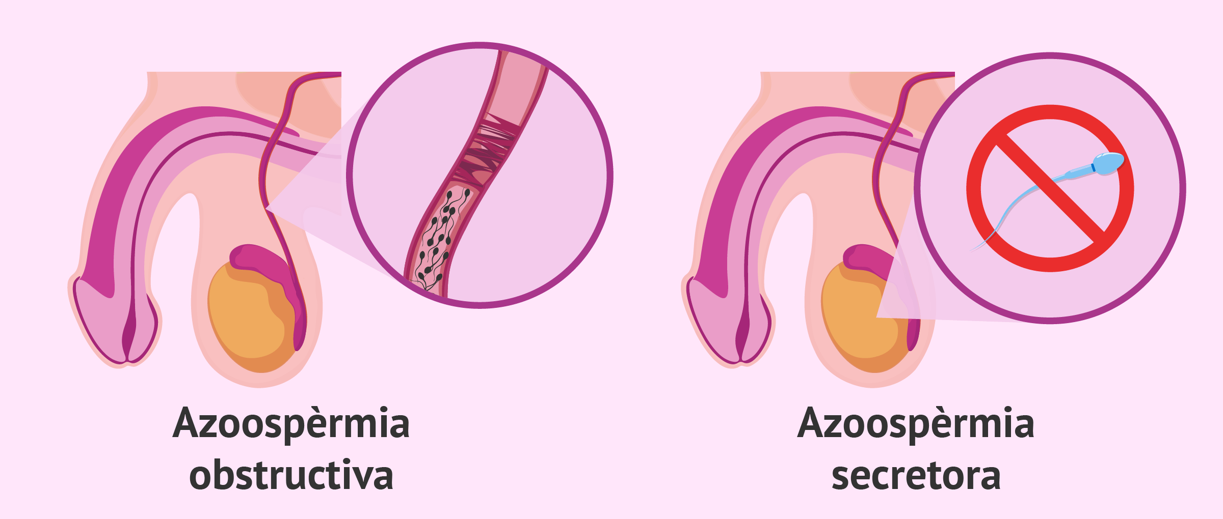 Imagen: Tipus d'azoospèrmia