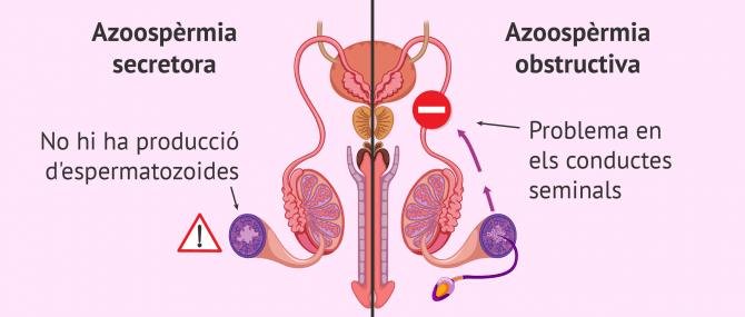 Imagen: Azoospèrmia secretora i obstructiva