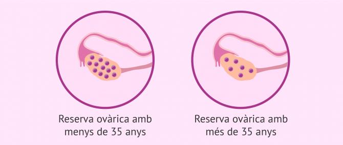 Imagen: Reserva ovàrica y edat de la dona