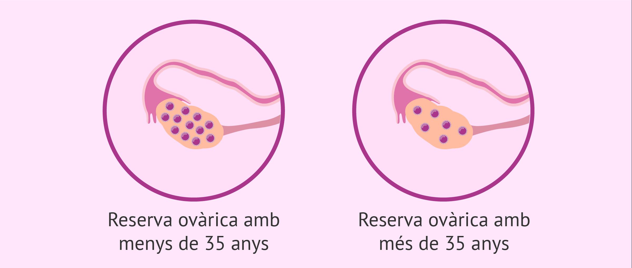 Reserva ovàrica y edat de la dona