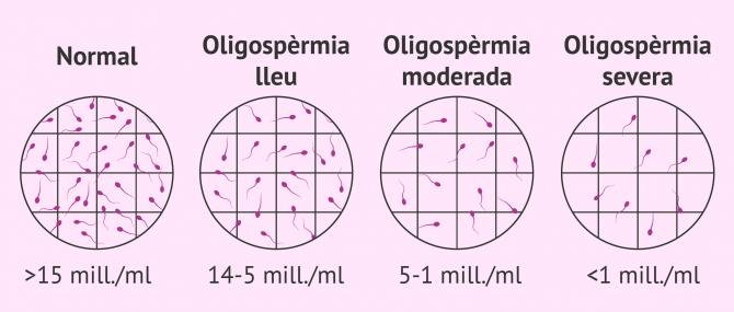 Imagen: Graus de oligospermia en mostres de semen