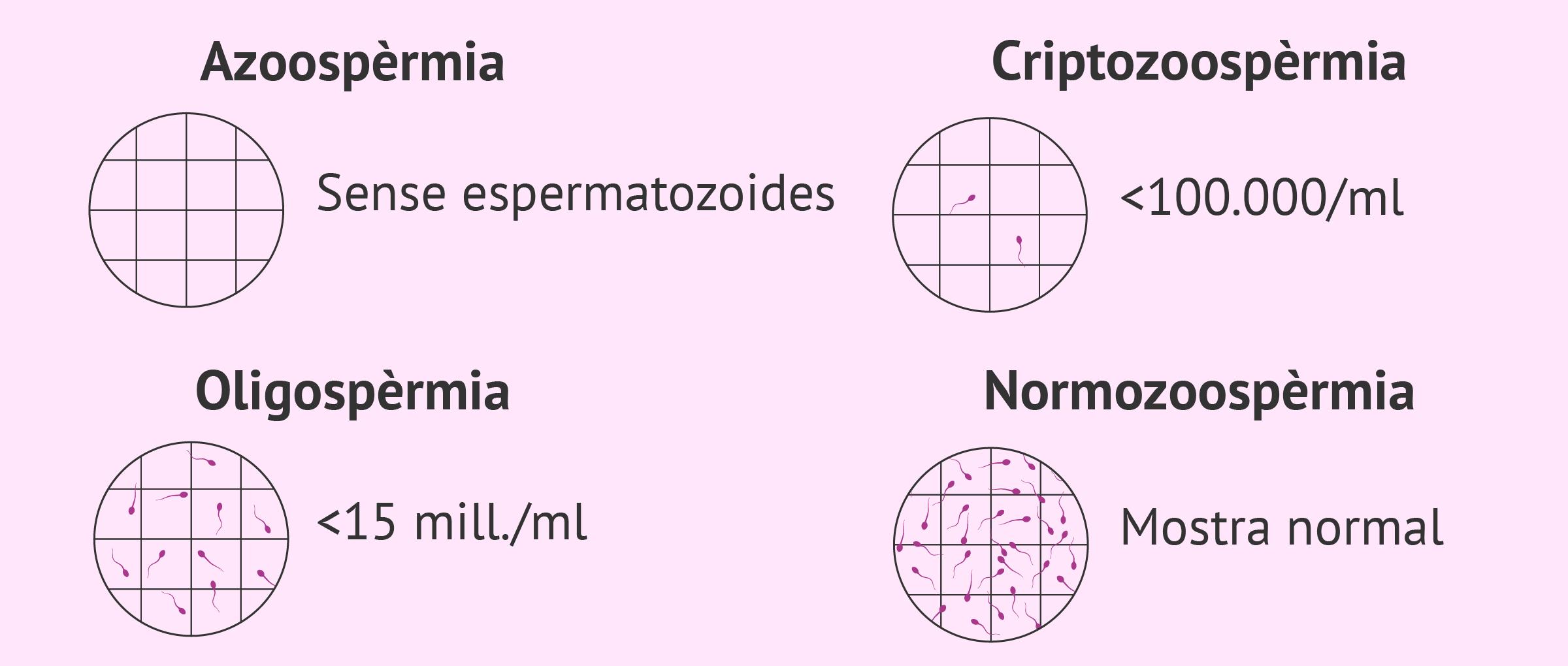 Imagen: Concentració d'espermatozoides en el seminograma