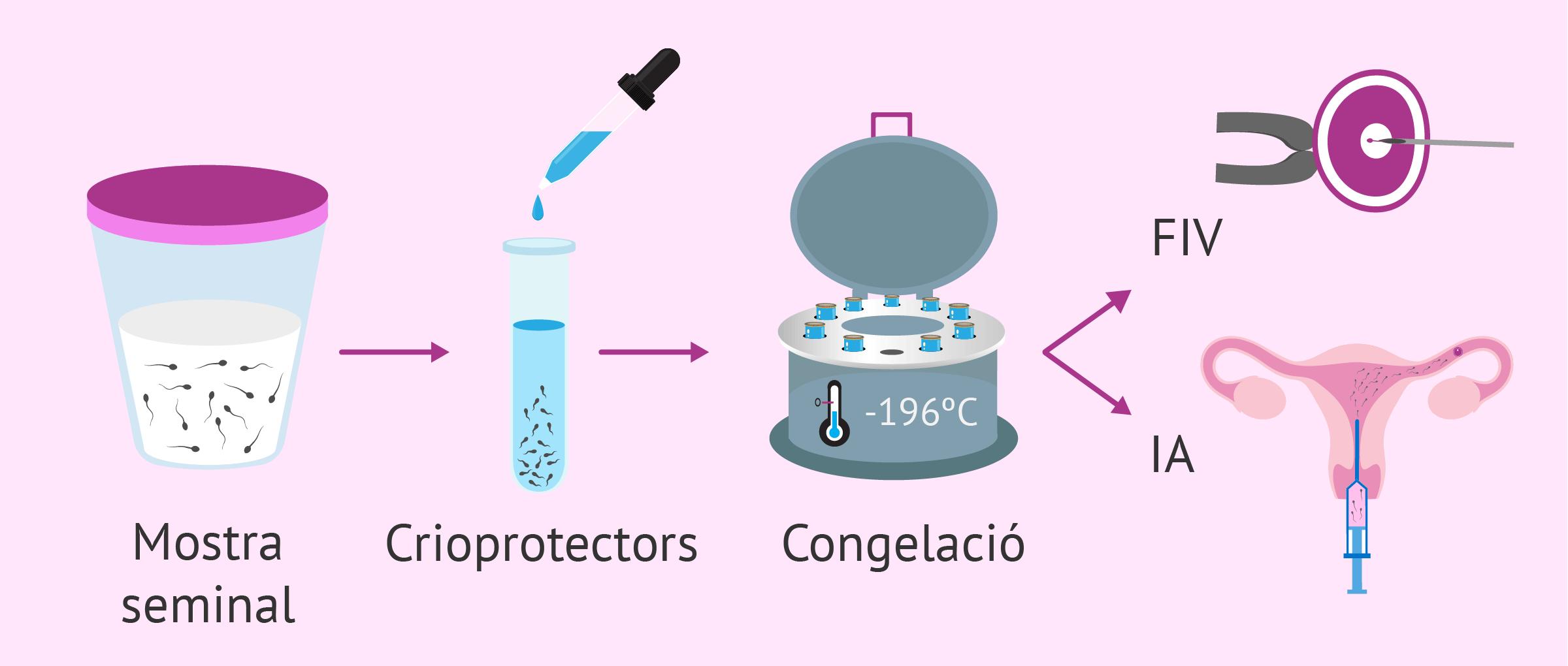 Congelació d'esperma: indicacions, procés i resultats