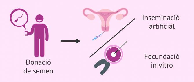 Imagen: Donació de semen per a inseminació artificial o per a FIV