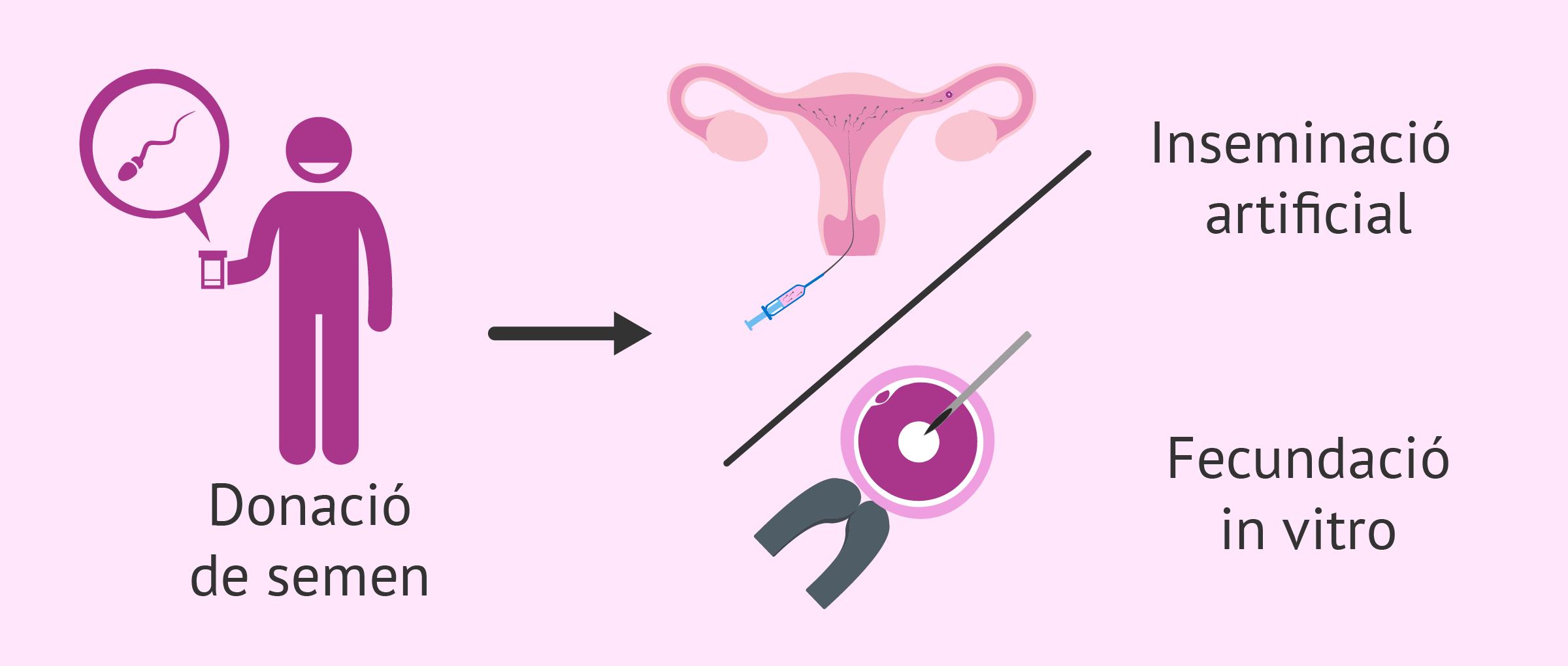 Donació de semen per a inseminació artificial o per a FIV
