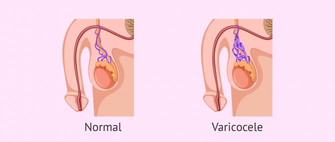 Imagen: Comparació de genitals amb varicocele