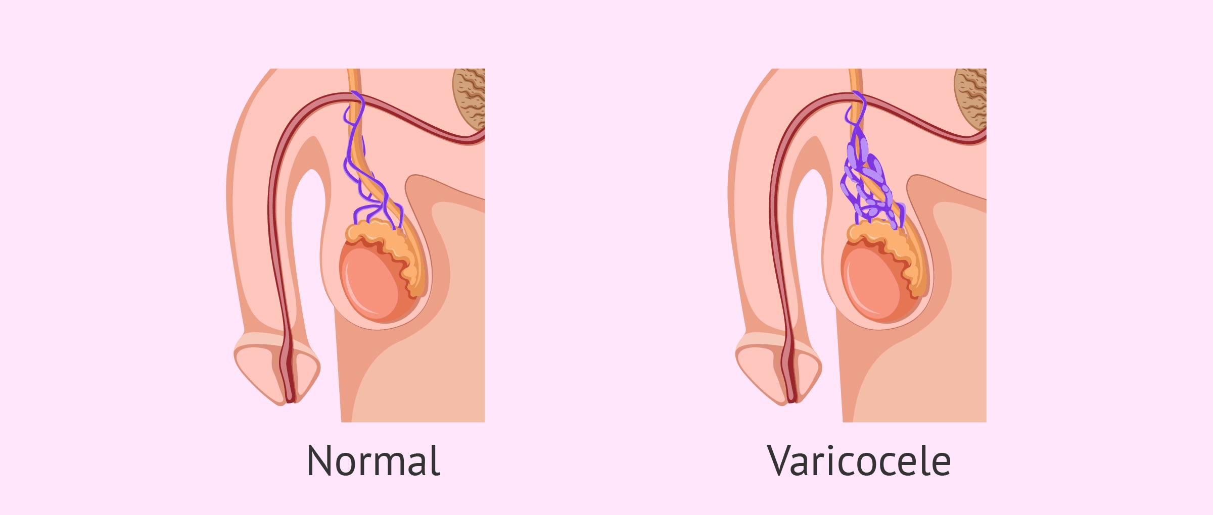 Comparació de genitals amb varicocele