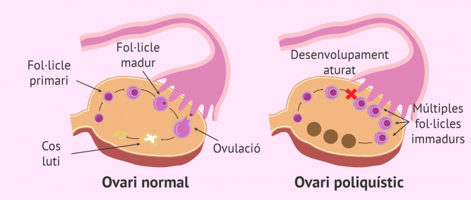 Imagen: Ovari normal vs. ovari poliquístic