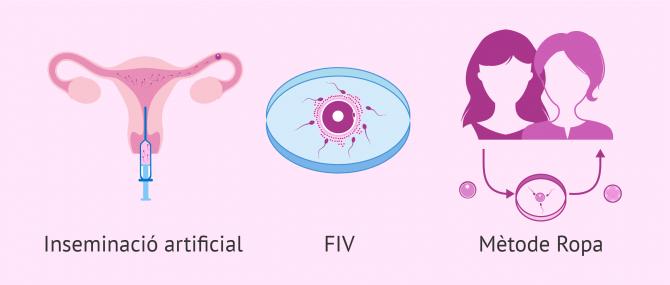 Imagen: Tècniques de reproducció assistida per a ser mares lesbianes
