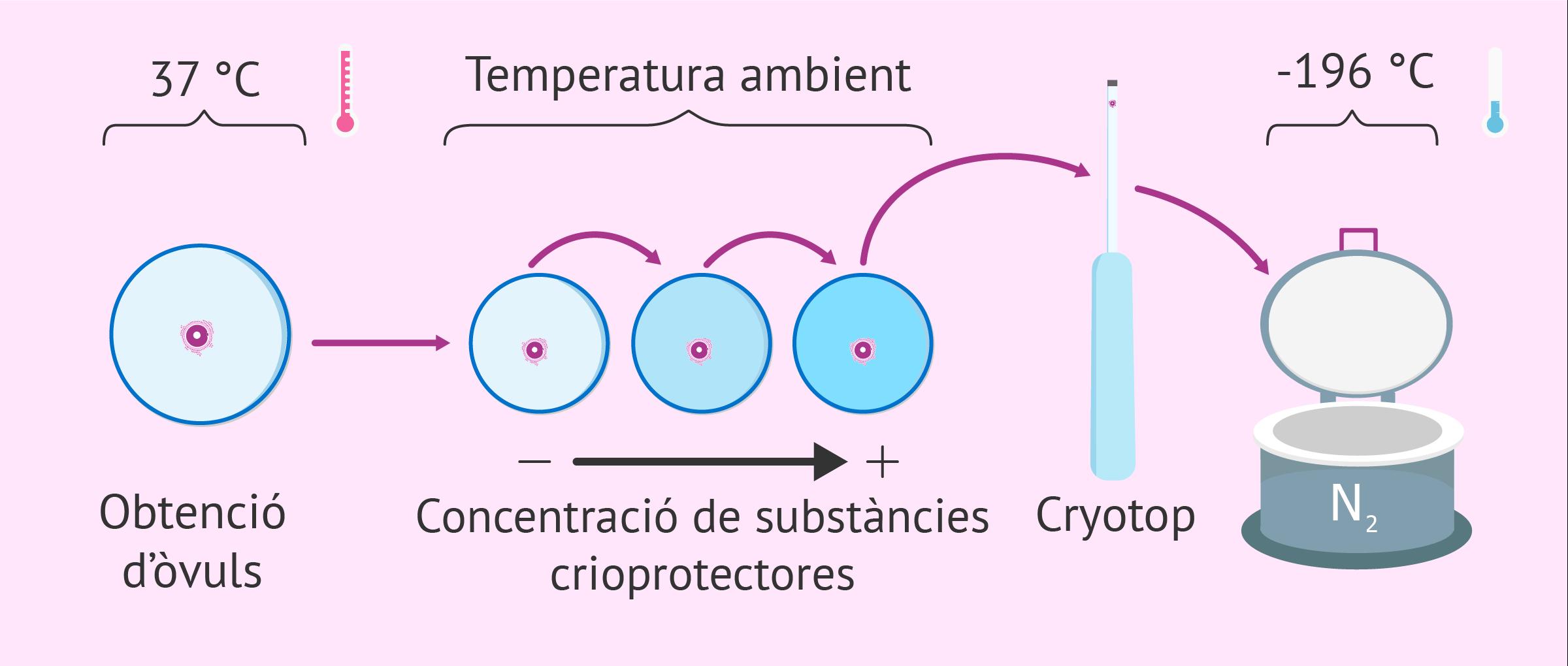 Congelació de gàmetes i embrions